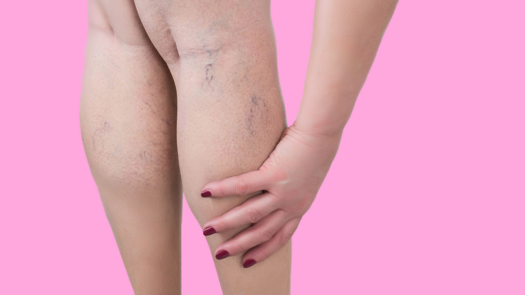 varicose veins in pregnancy | Jax, FL Birth Classes